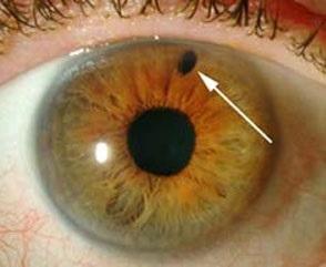 Ostraja-zakrytougolnaja-glaukoma